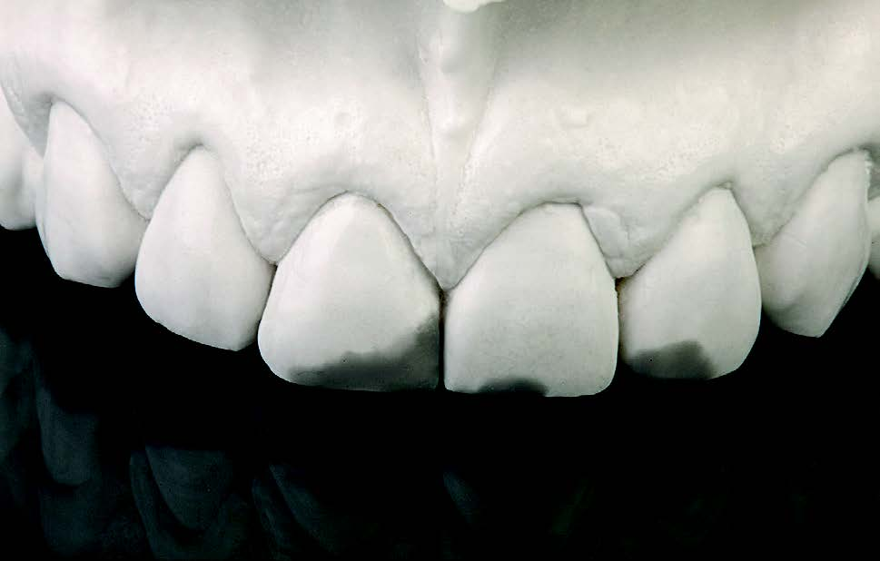A diagnostic wax-up was created to restore the original form and contours of the incisors.