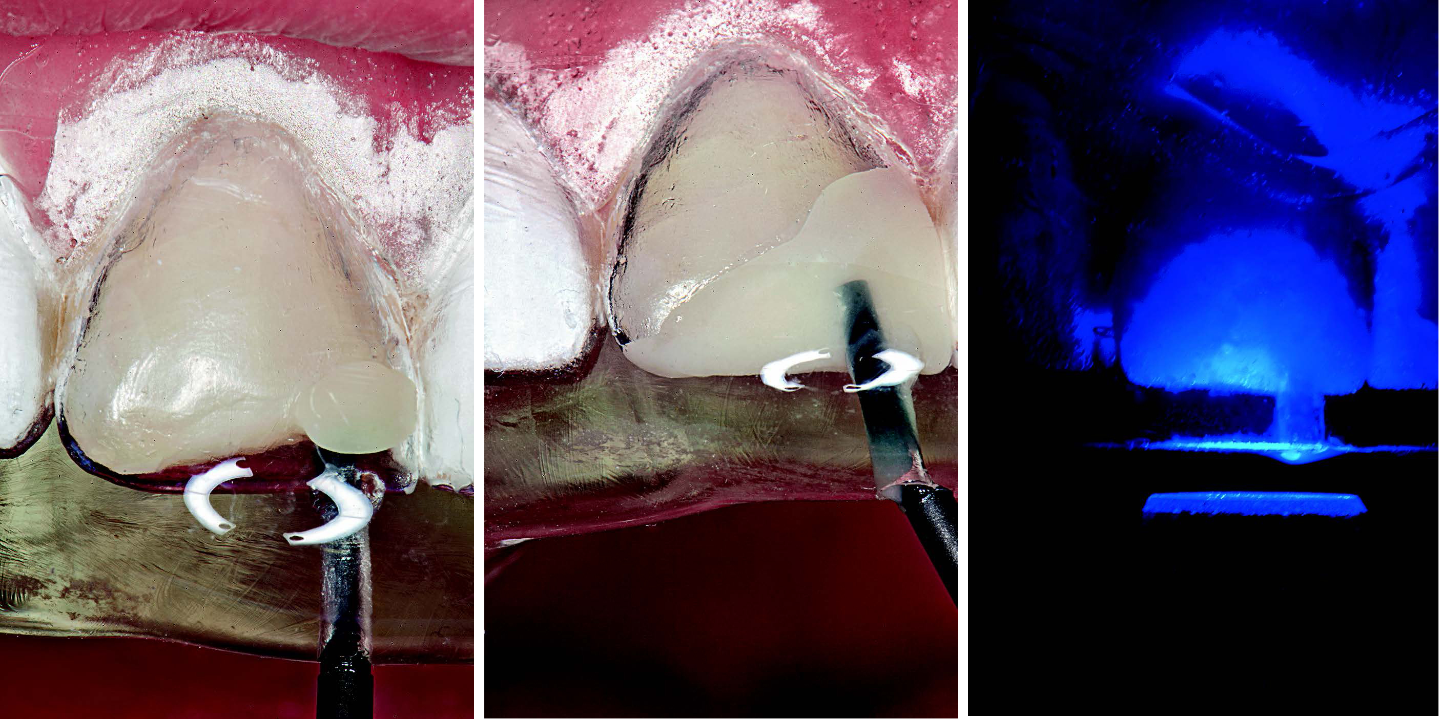 The clear silicone matrix was placed over the anterior segment of the maxillary arch, and an opacious A2-shaded flowable resin composite (G-aenial Universal Flo) was initially injected through a small opening above each tooth. An A1-shaded flowable resin composite was then injected to mix with the A2-shaded composite (inverse injection layering technique). The resin composite was cured through the clear resin matrix on the incisal, facial, and lingual aspects for 40 seconds.