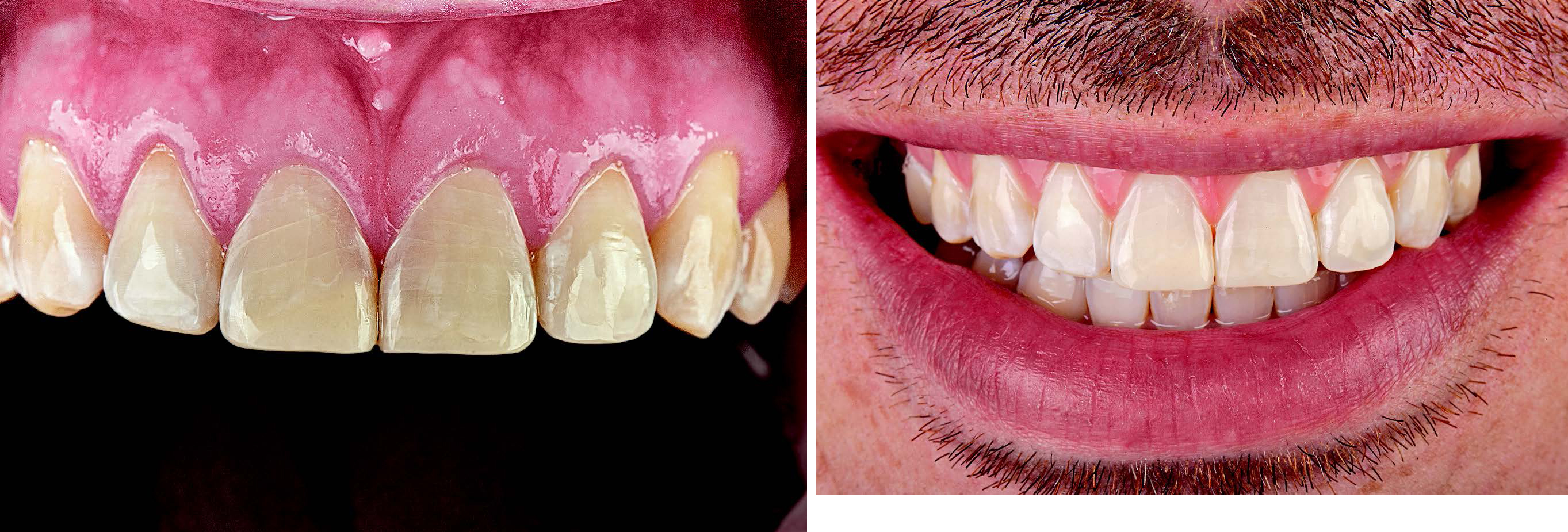 The completed resin composite restorations with optimal anatomical form and color integration. The composite restorations establish the optimal esthetic parameters for a natural smile.