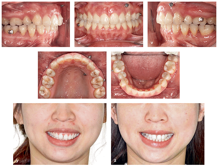 Clear Aligner Technique: Bringing Orthodontic Treatment into